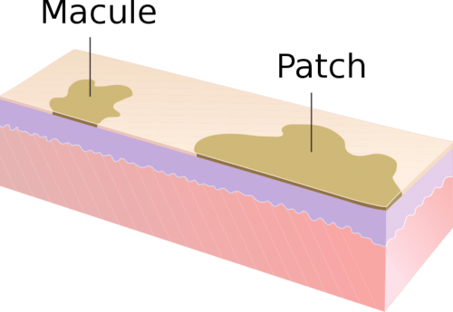 Dental Dermatology Terms: Macules and Patches